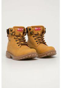 Żółte buty zimowe Big-Star na sznurówki, na zimę, z cholewką, z okrągłym noskiem