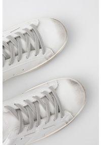 Answear Lab - Buty. Nosek buta: okrągły. Zapięcie: sznurówki. Kolor: biały. Materiał: guma